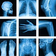 Manipulateur en radiologie: Situation catastrophique !   31/10/19